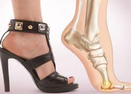 Плоскостопие, косточка на ногах