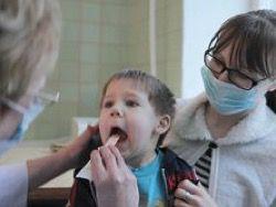 Факты, которые вы должны знать о свином гриппе